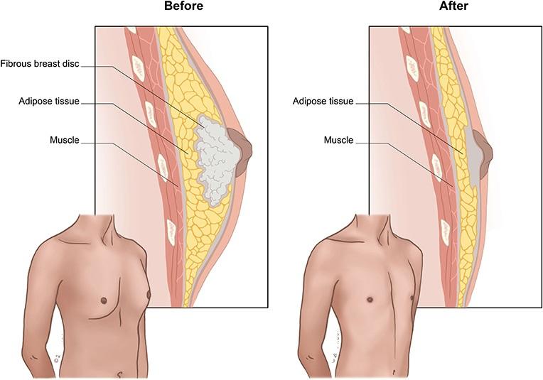 Définition et causes de la gynécomastie